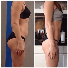 plaski brzuch